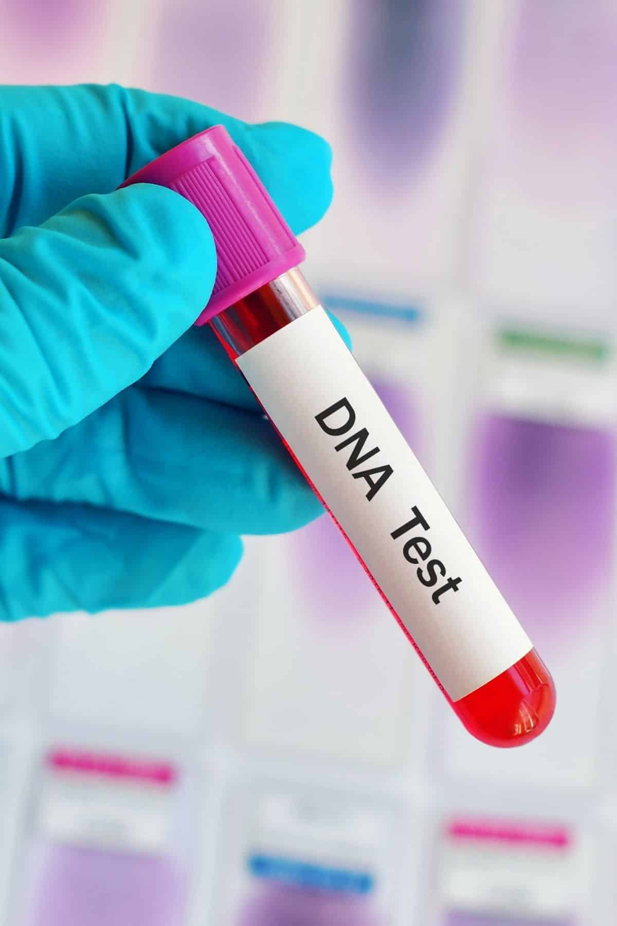 medical person holding a vial that says dna test